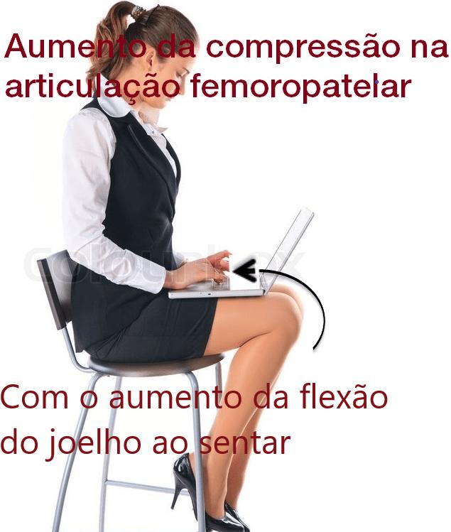 Compressão na articulação femoropatelar - Instituto Fortius