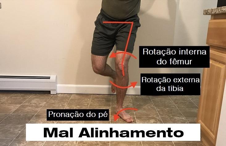 Mal alinhamento do membro inferior no agachamento unilateral.