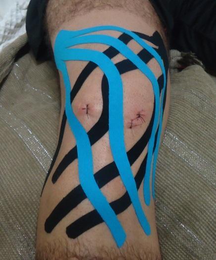 Taping Knee - Instituto Fortius