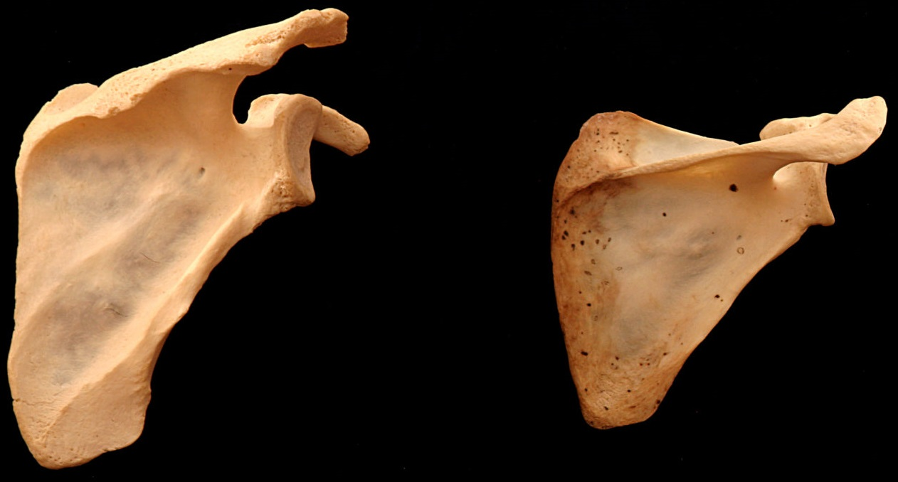 Anatomia do ombro: Tipos de escápula direita - diferenças na cobertura.