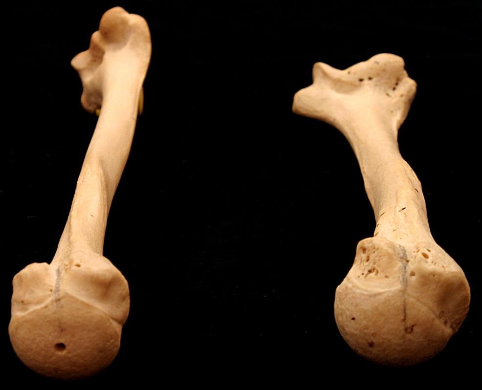 Anatomia do ombro: ângulo de torção do úmero.