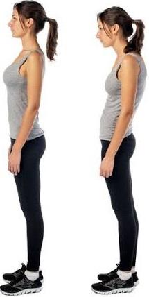 Postura normal x postura desleixada.