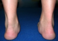 eversão excessiva dos pés