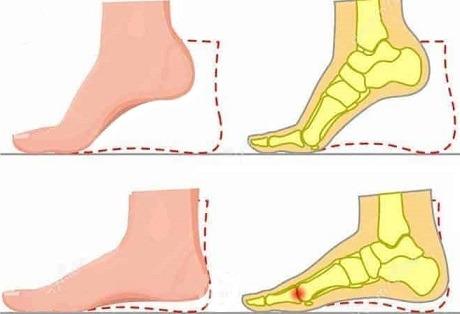 Comparação entre o movimento normal e a condição conhecida como functional hallux limitus