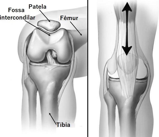 Step Ups, Step Downs e Agachamentos Unilaterais: Descrição anatômica do joelho e dinâmica do movimento patelar. À esquerda patela e fossa intercondilar; à direita trajetória da patela na fossa.