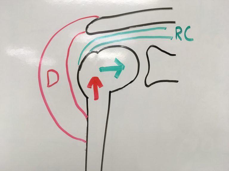 Diagrama do par de forças deltóide x supra-espinal resultando na compressão das estruturas no ombro.
