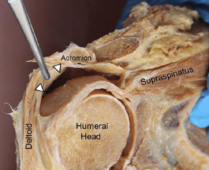 Exercícios de Empurrar Machucam o Ombro: Imagem anatômica colocando em detalhe o par de forças entre o deltóide e o supra-espinal.