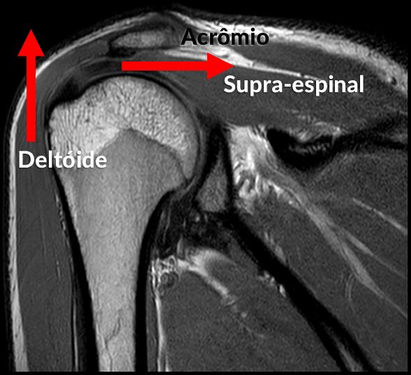 Exercícios de Empurrar Machucam o Ombro: Par de forças deltóide e supra-espinal. Imagem de ressonância magnética.