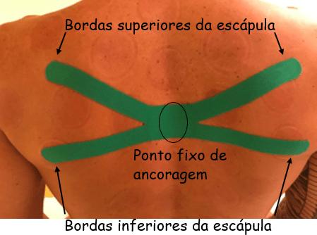 Corte em X da kinesio tape na região das escápulas.