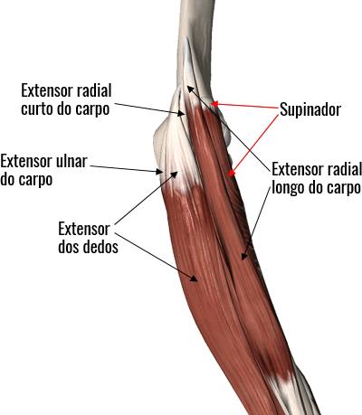 Detalhe da anatomia dos músculos extensores do punho, envolvidos na epicondilite lateral.