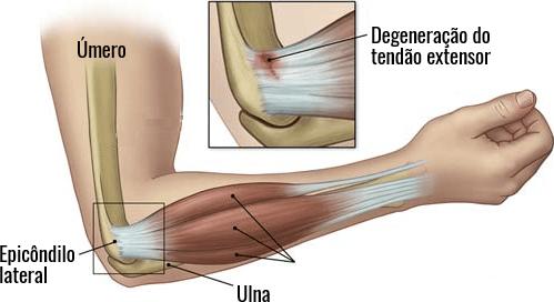 Local onde ocorrem os sintomas da epicondilite lateral.