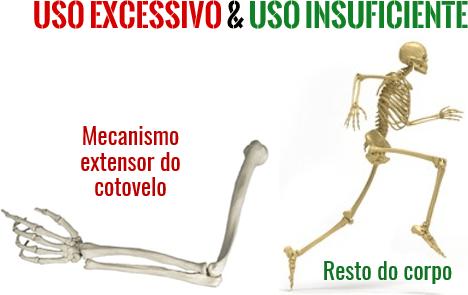 Causa da epicondilite lateral: Uso excessivo do cotovelo e uso insuficiente do resto do corpo.